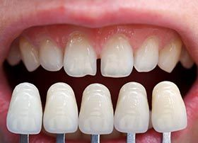 A row of veneers compared to imperfect teeth