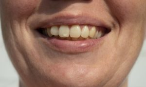 person with a white spot on their tooth