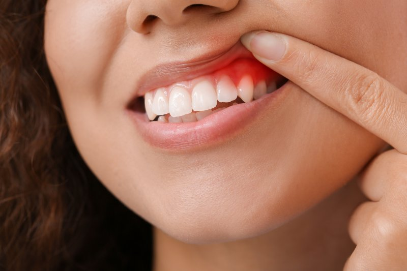 Woman lifting lip to show inflamed gum