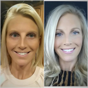 Invisalign.Before.After.Beauty.2