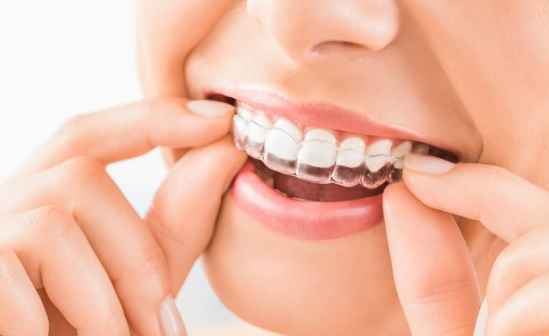 Invisalign in Scripps Ranch