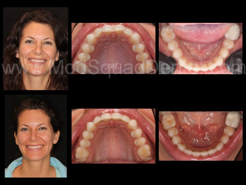 S.B.before.after.invisalign