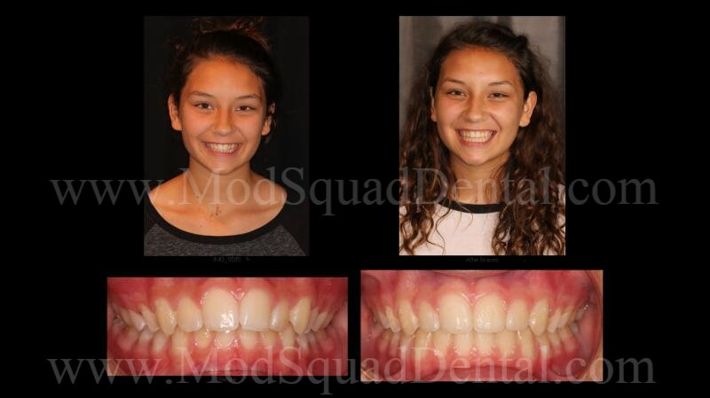 Before & After smile after completing braces with Dr. Greg Friedman, & MOD Squad Dental