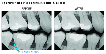 deep-cleaning-xray