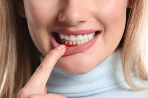 woman has gum disease in Scripps Ranch