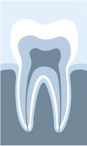 Does a disabled family member need sedation services from a dentist in Scripps Ranch?