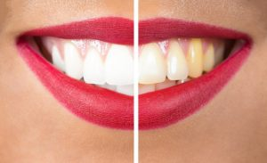 Thinking about teeth whitening in Scripps Ranch this 2017? Mod Squad Dental offers long-term solutions.