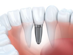 dental implants in scripps ranch, ca