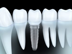 Your dentist for dental implants in Scripps Ranch.