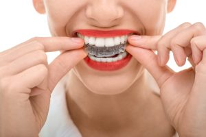 5 essential facts about Invisalign in Scripps Ranch.